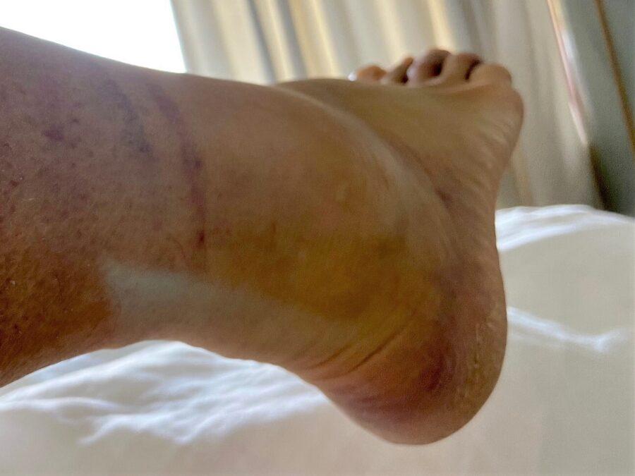 Phil foot1